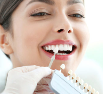 Dental Veneers in Anchorage, AK